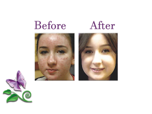 Medical Acne Treatment Las Vegas