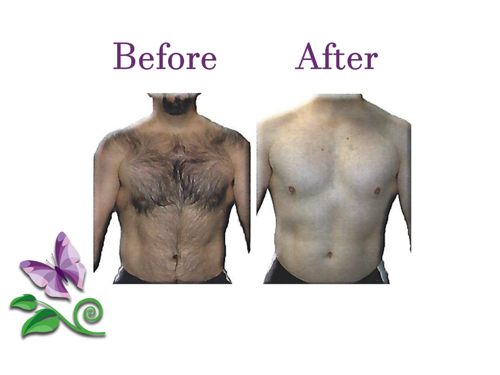 Permanent Hair Removal Chest