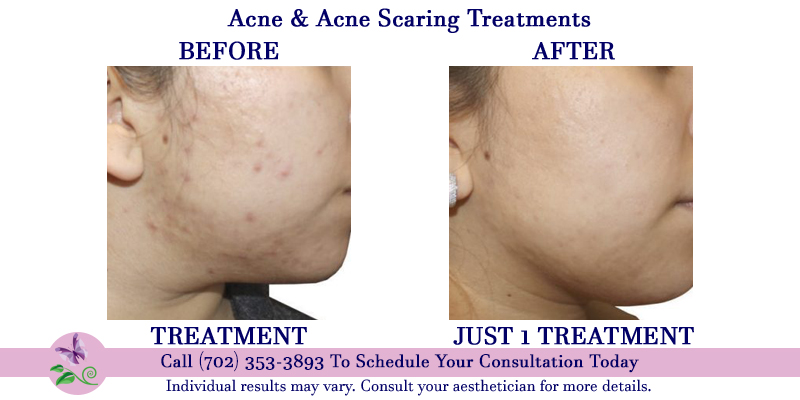 Acne Treatment & Acne Scar Therapy - Shannon's Serendipity