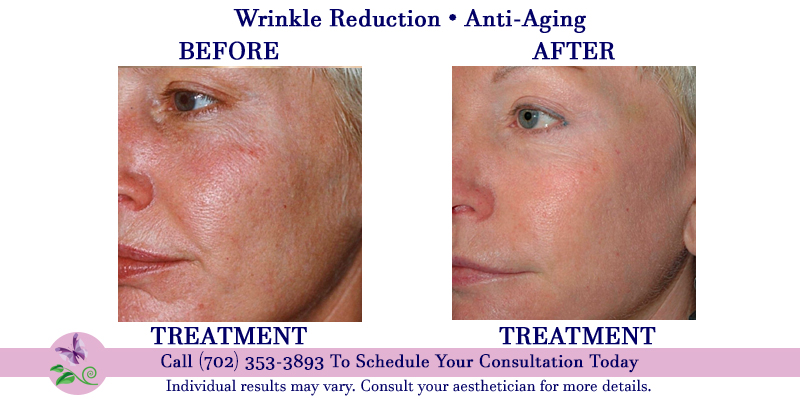Anti Aging Wrinkle Reduction Treatments Shannon S Serendipity